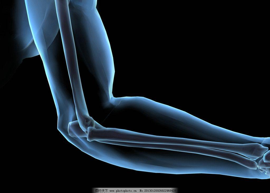 手臂 胳膊 腕骨 人体透视 身体检查 拍ct 身体结构 人体研究 医学器官图片